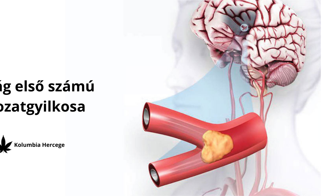 CBD VS. Szív és érrendszeri megbetegedések