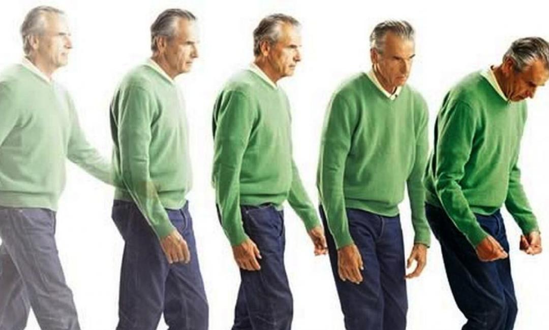 CBD vs. Parkinson kór